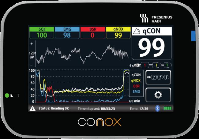 Conox-front-650